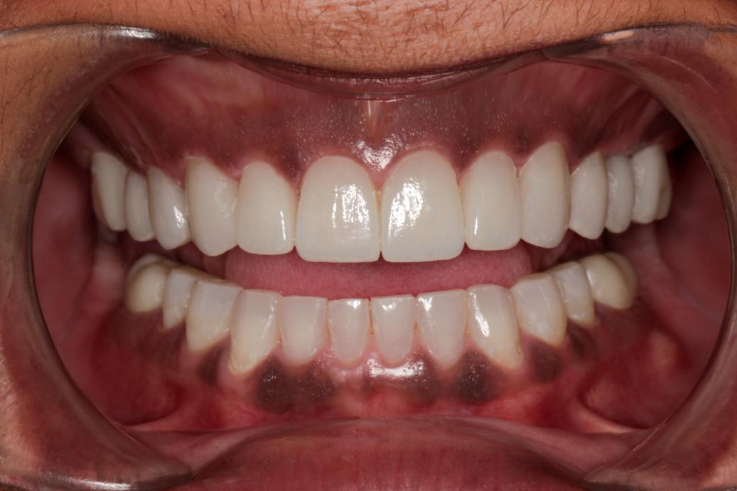 smile-design-after-44