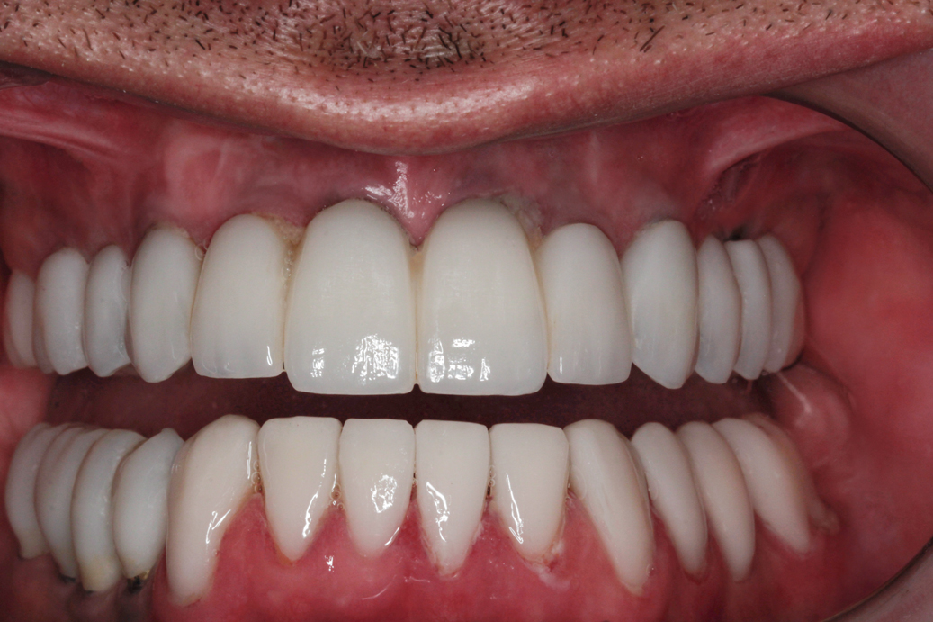 cosmetic-dentistry-after-48