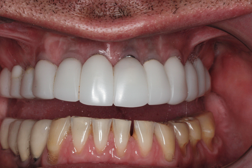 cosmetic-dentistry-before-48