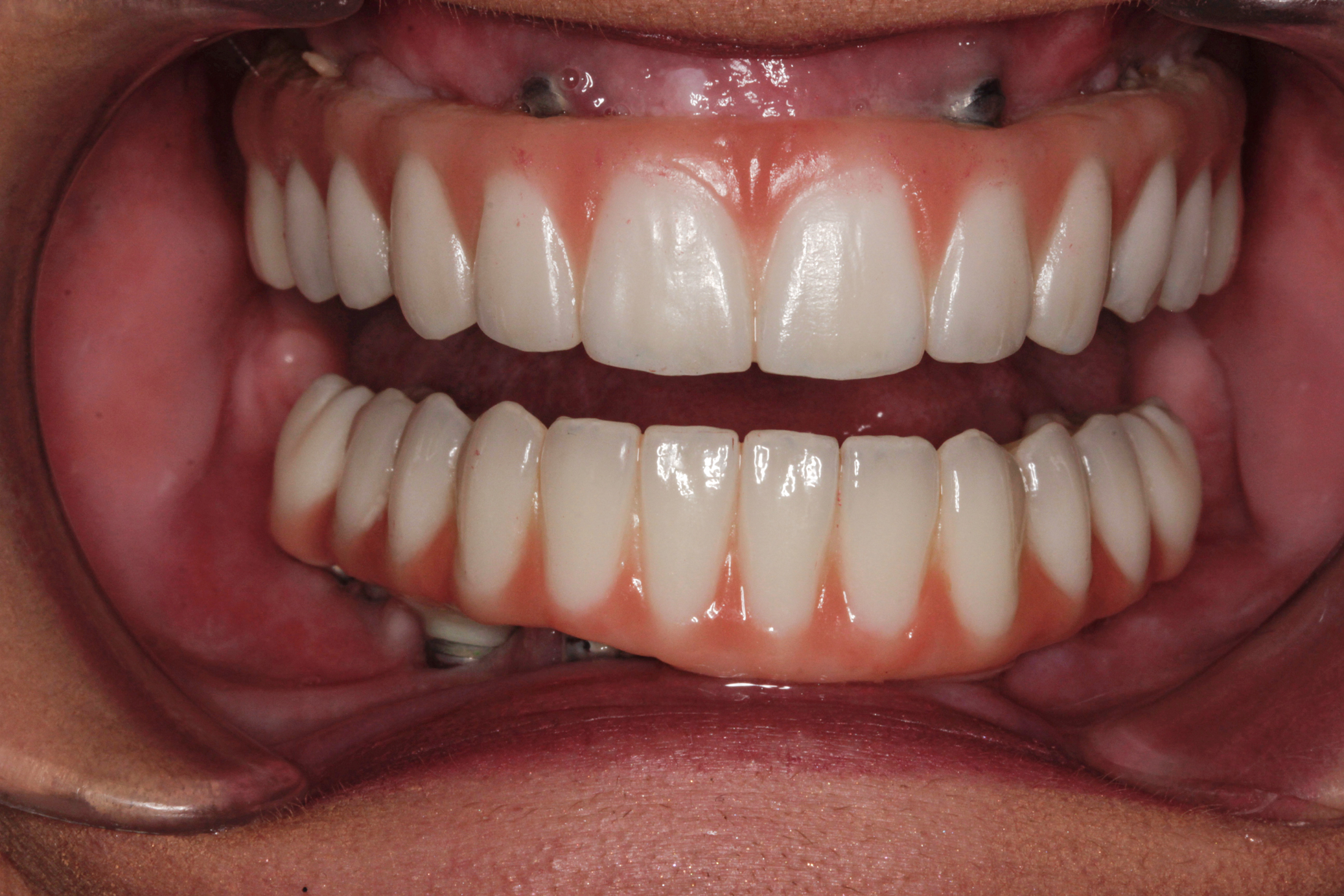 full-mouth-restoration-after-57