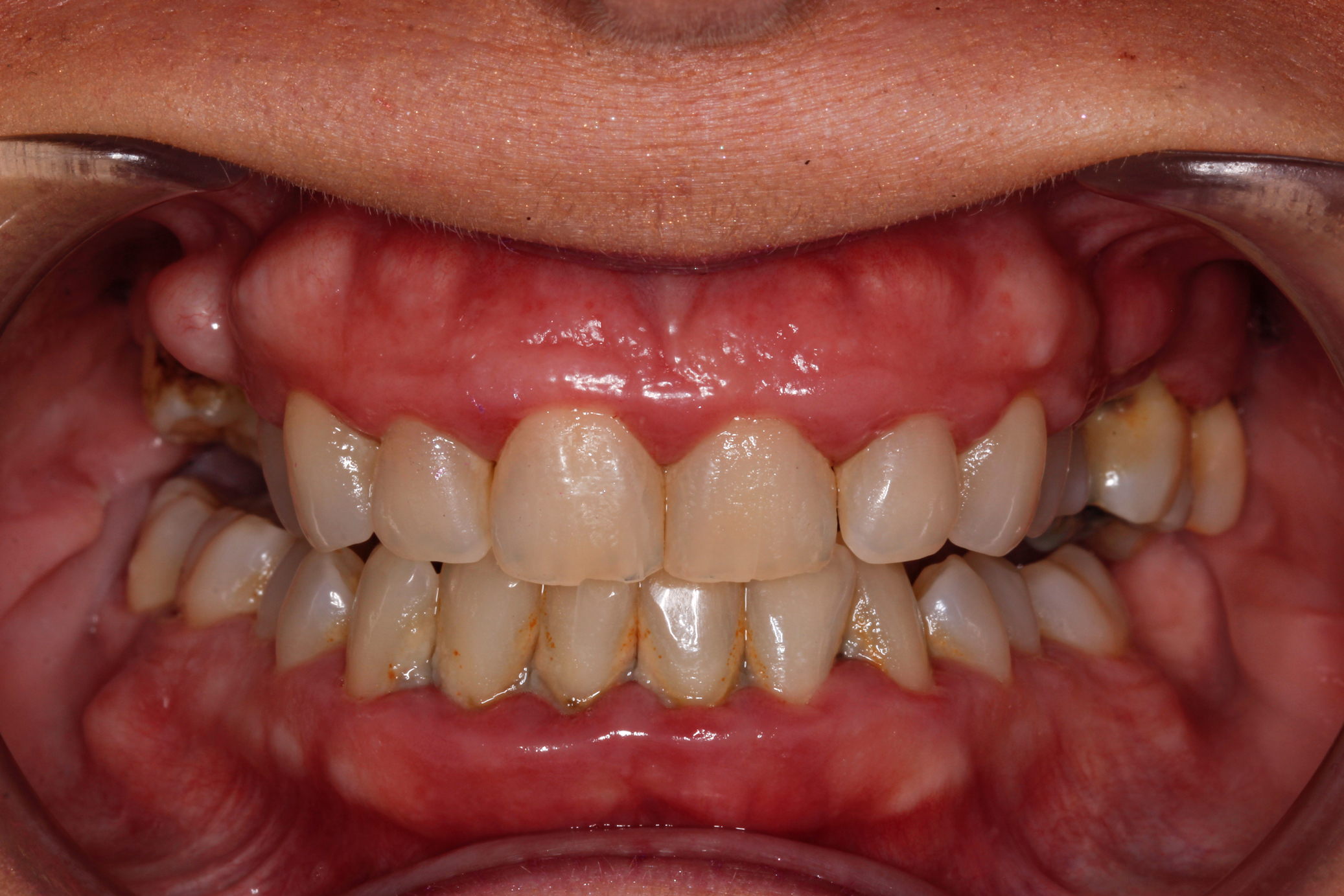 full-mouth-restoration-before-57