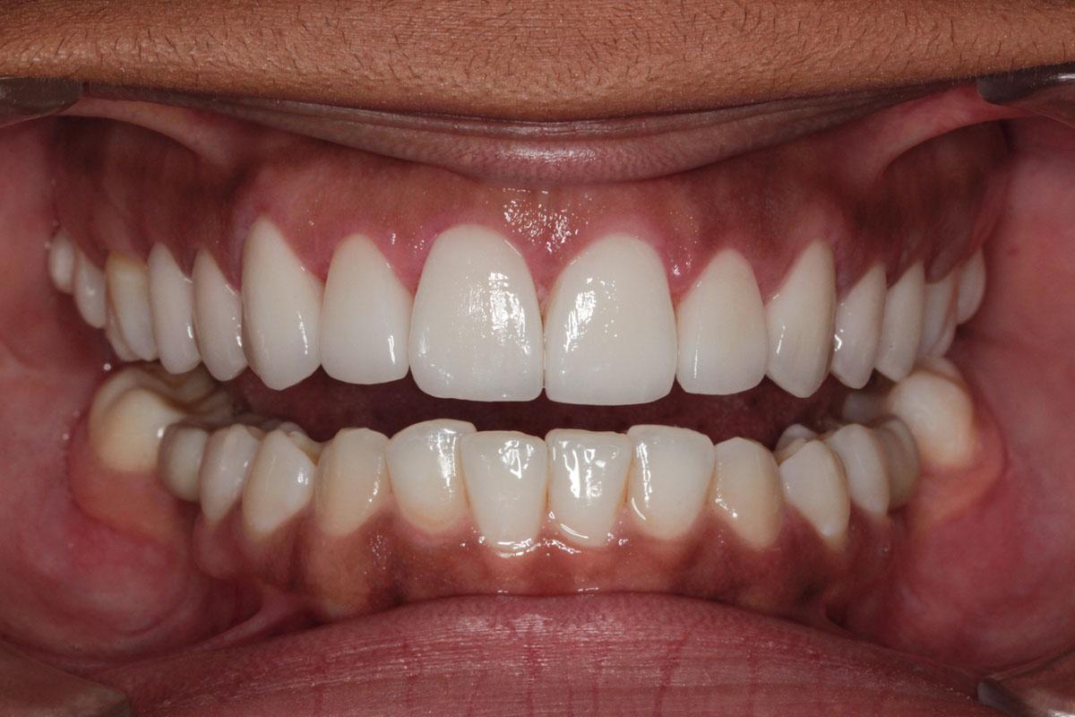 smile-design-after-24