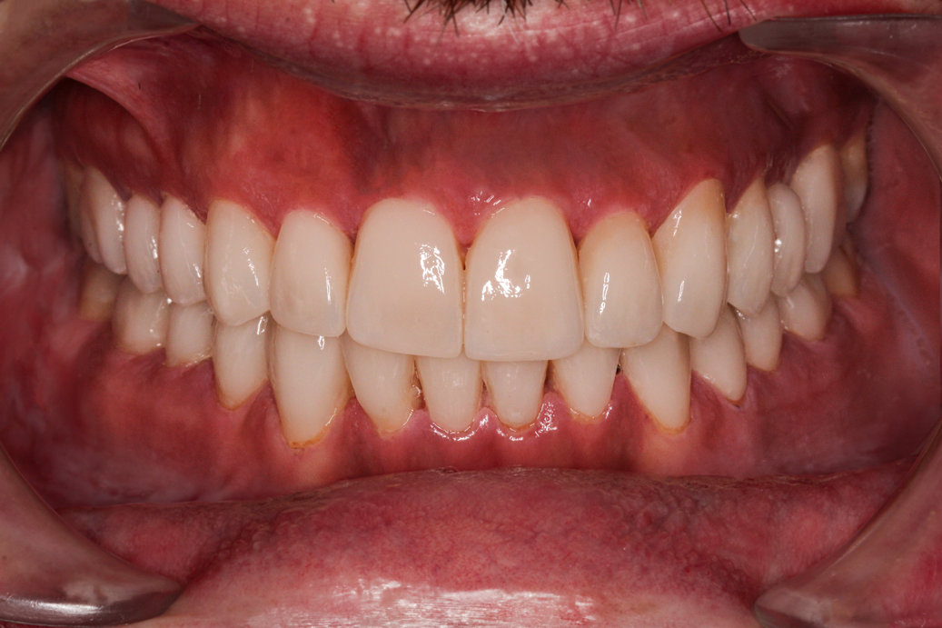 cosmetic-dentistry-after-case-91