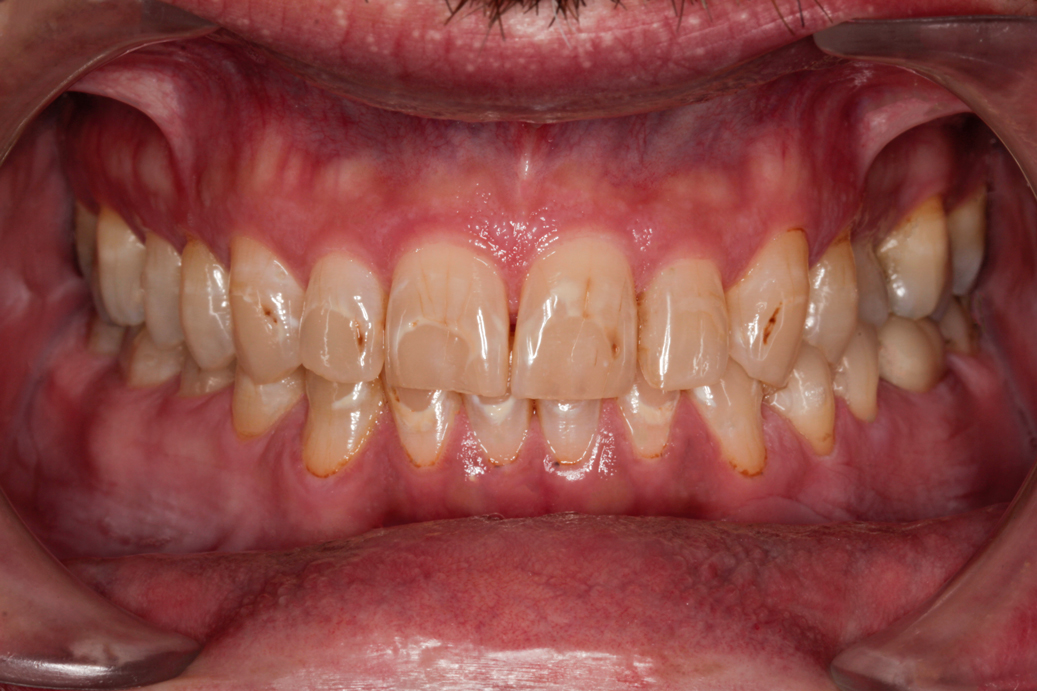 cosmetic-dentistry-before-case-91