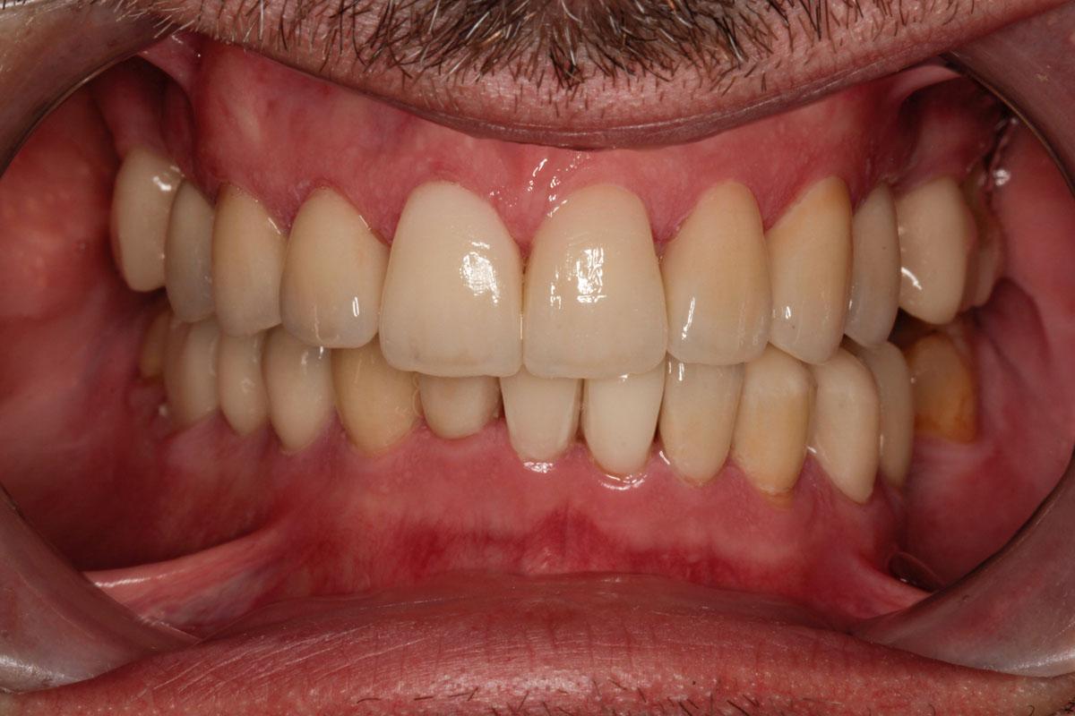 dental-implant-after-case-92
