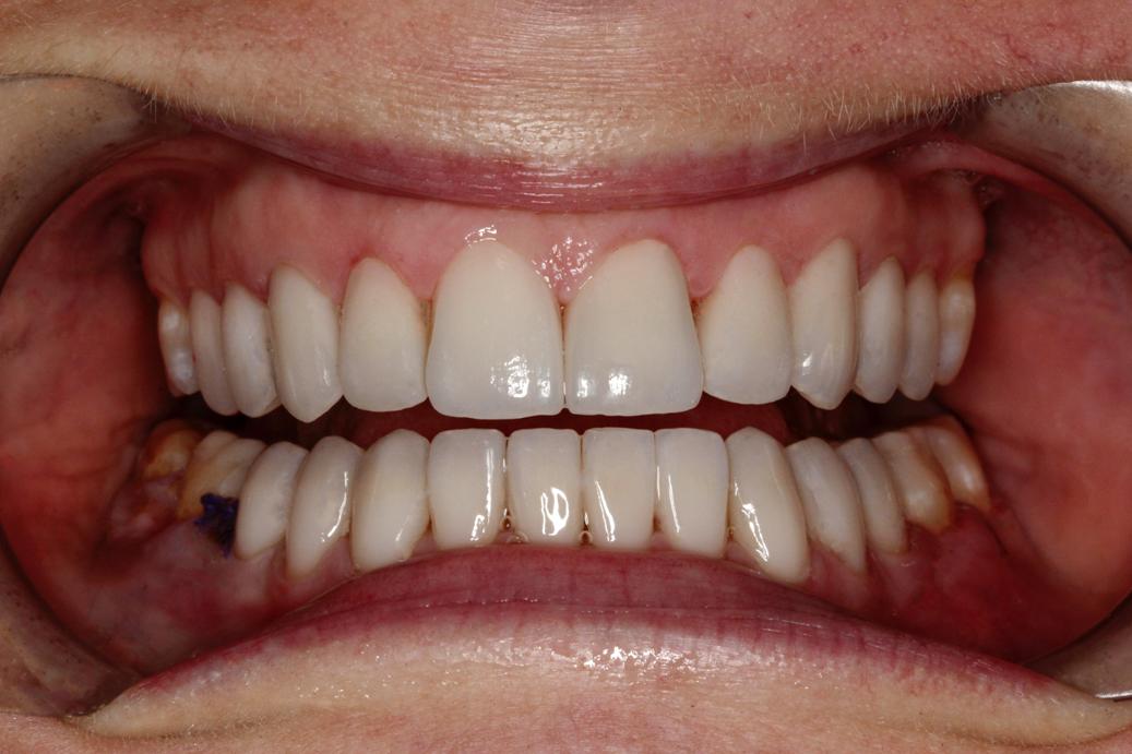smile-design-after-110
