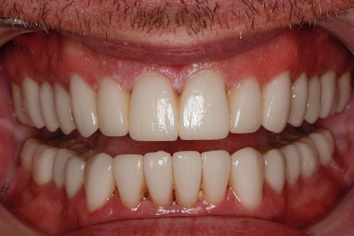 smile-design-after-case-133